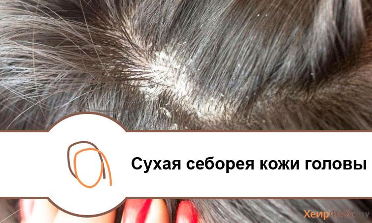 Сухая себорея кожи головы