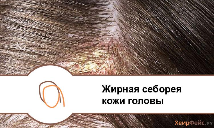 Жирная себорея кожи головы: фото