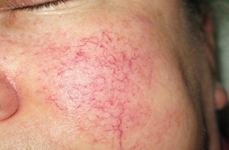 Купероз кожи лица: способы и процедуры для лечения купероза