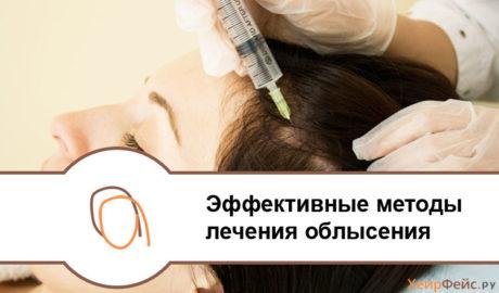 Эффективные методы лечения облысения