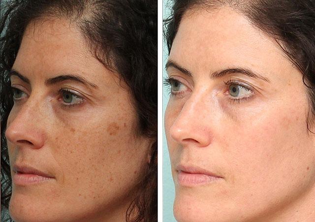 Отбеливание кожи от пигментных пятен